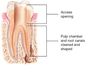 Root-Canal-Access-Openi