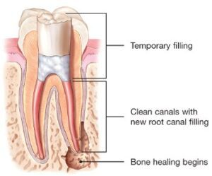 endodontic-retreatment-root-canal-temporary